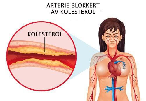 Hvordan kontrollere kolesterolnivået ditt