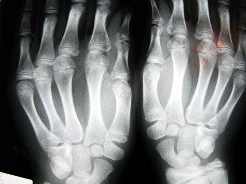 hender vist på røntgenbilde