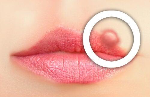 Hvordan forhindre utbrudd av herpes labialis