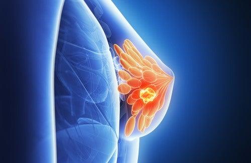 bryst kreft