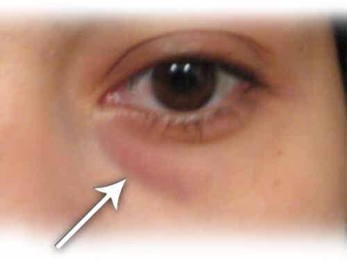 Hjemmebehandling av hovne øyne