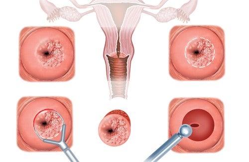 livmorhals-erosjon