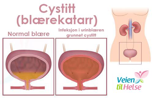 blærekatarr gir smerte ved vannlating