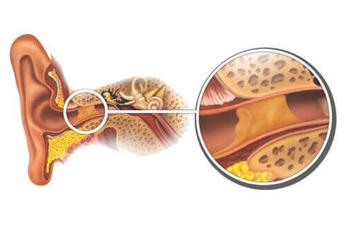 Hvordan fjerne ørevoks naturlig