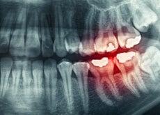 tannskjæring