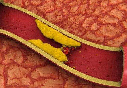Hvordan kontrollere høyt kolesterol på en naturlig måte