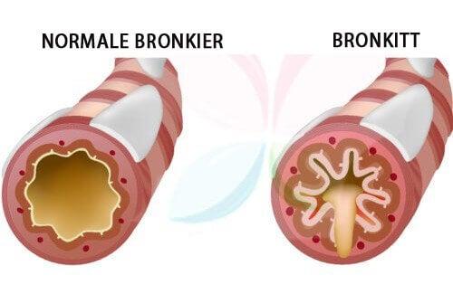 Bronkitt