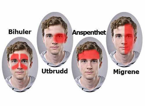 Ny og effektiv behandling av migrene