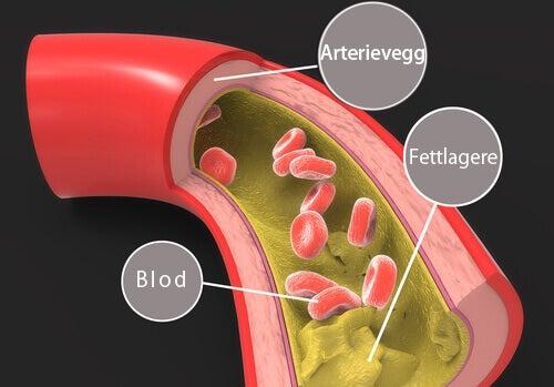 Mandelens kolesterolreduserende egenskaper