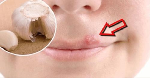 Hjemmelagde remedier for hurtig behandling av munnsår
