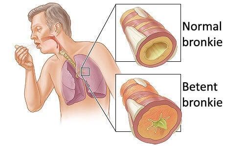 lunger vist på innsiden