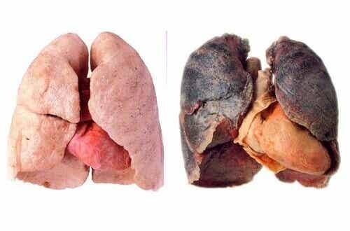 Råd for renere lunger