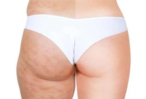 Tips til hvordan du kan massere bort cellulittene