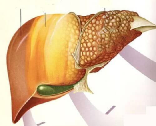 1-fatty-liver