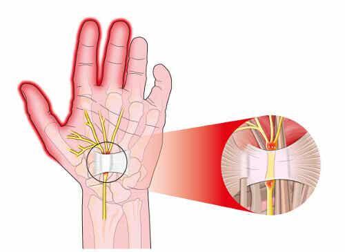 5 måter å lindre smerter fra karpaltunnelsyndrom