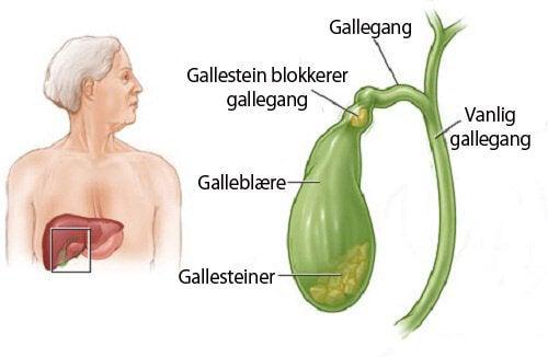 Hvordan kan jeg vite om jeg har gallesteiner?