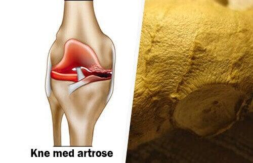 Hvordan du kan eliminere symptomene på artrose