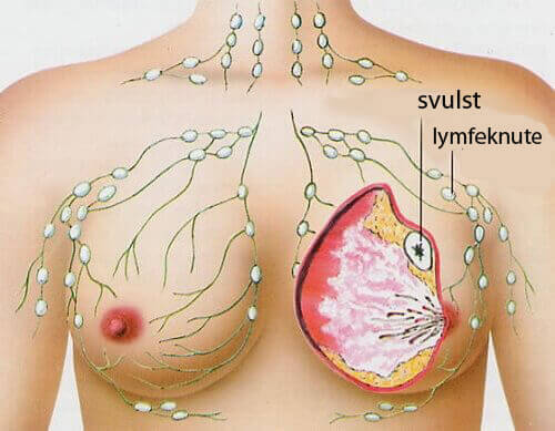 5 av de vanligste typene av kreft hos kvinner