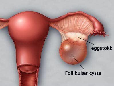 deilige rujenter cyste i magen