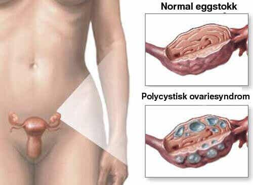 Polycystisk ovariesyndrom - Naturlige hjelpemidler