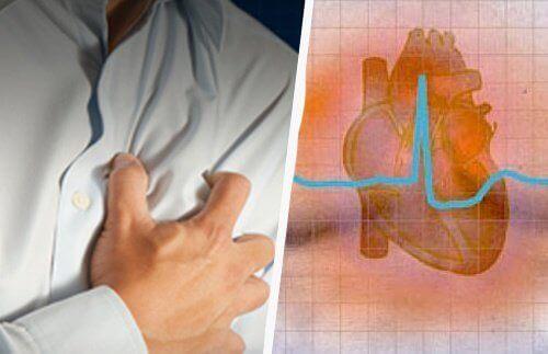 Hjertearytmi: symptomer og konsekvenser
