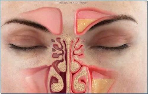 Hvordan lindre tett nese på under ett minutt