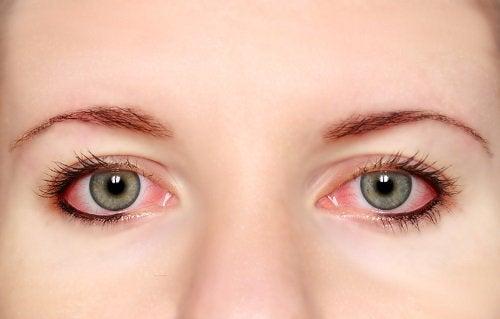 5-rosa-øye