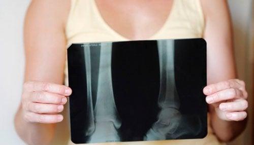 Beinskjørhet hos kvinner - Forebygging og behandling