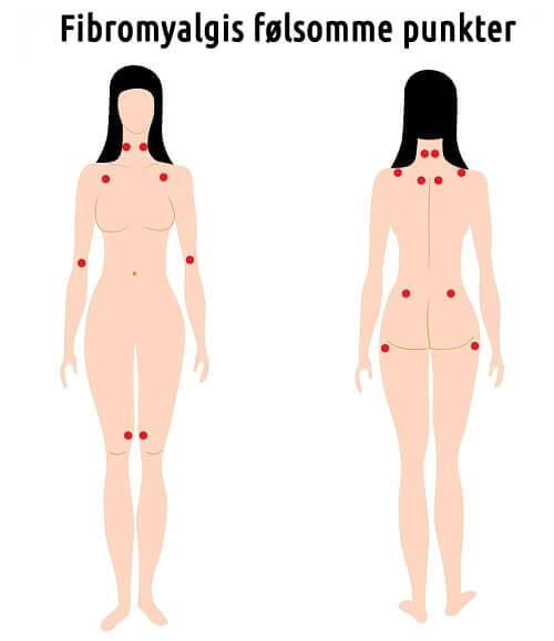 Fibromyalgis følsomme punkter