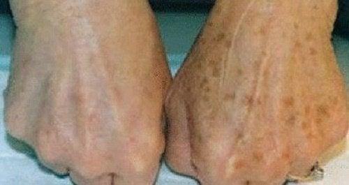 Hvordan redusere brune flekker på hendene