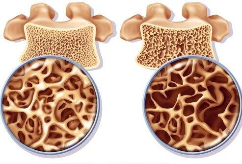 Beinskjørhet hos kvinner – Forebygging og behandling