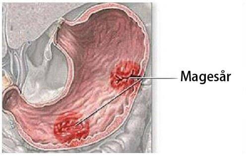 Lær om de ulike symptomene på magesår
