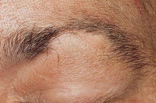 Øyenbryn og øyevipper faller av: Tips og råd