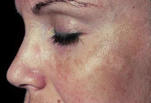 6 kremer mot pigmenteringer i ansiktet
