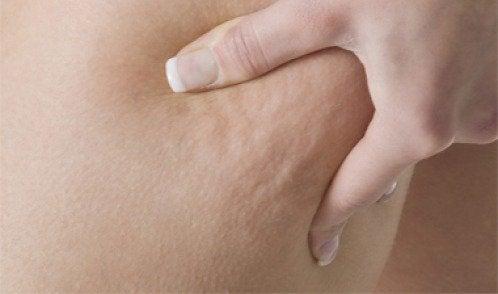 3 medisinske teer for å bekjempe cellulitter