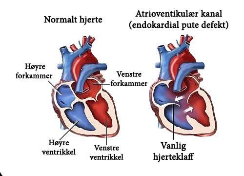 7 symptomer på bilyder på hjertet du bør vite om