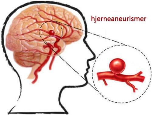Hvordan oppdage og forebygge aneurismer