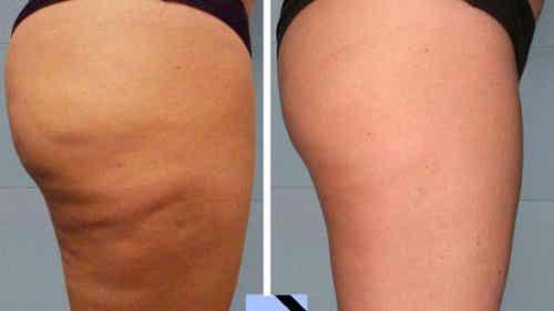 Enkle hjemmebehandlinger mot cellulitter