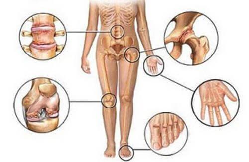 5 naturlige betennelsesdempere for leddsmerter