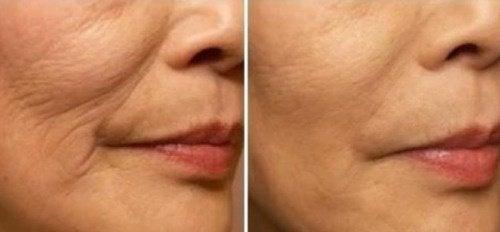 Forhindre fine linjer og rynker rundt leppene