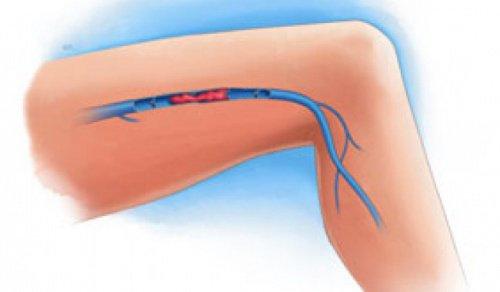 Noen symptomer på blodpropp i bena