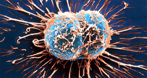 11 symptomer på kreft som ofte blir oversett
