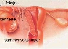 Symptomer på akutt bekkeninfeksjon
