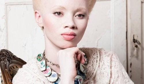 thando-hopa-albino