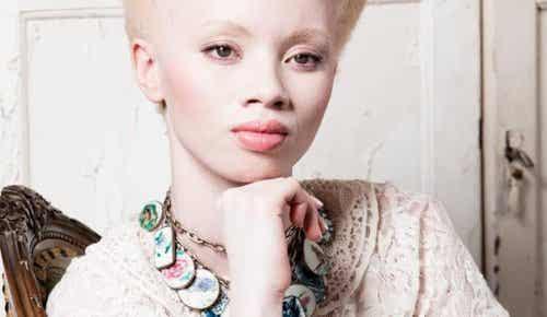 Livet som albino: Møt modellen Thando Hopa