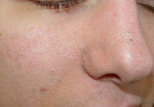 Ansiktsmasker mot hudormer