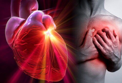 hvordan unngå hjerteinfarkt