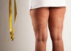 Kan kanel hjelpe mot cellulitter?