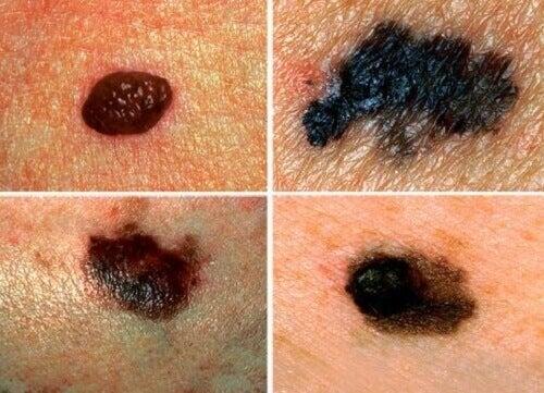 Hvordan oppdage hudkreft?