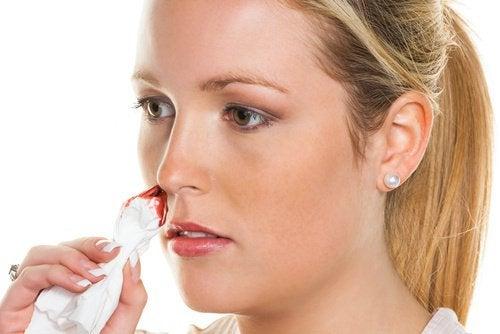 Løsninger mot neseblod helt naturlig